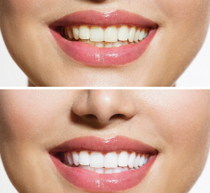 Отбеливание зубов klox гель