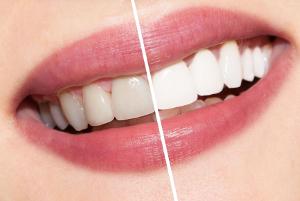 Отбеливание зубов системой Opalescence Boost
